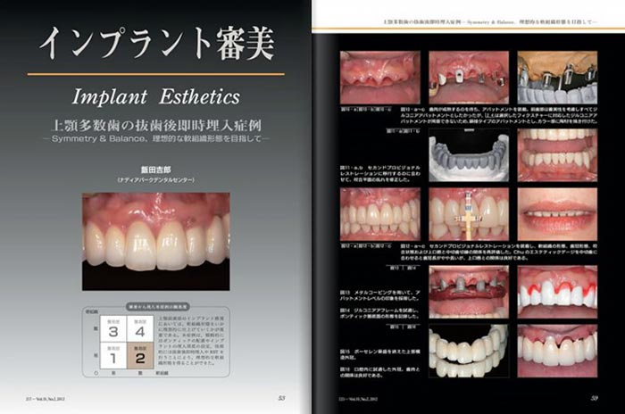 Dental Implantology抜粋