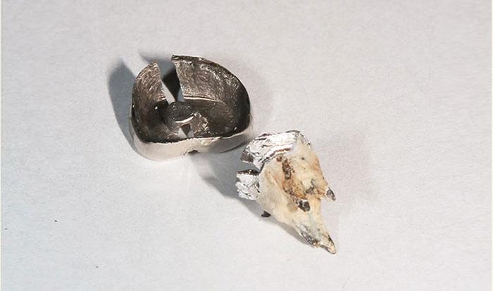 セメントで治療した歯