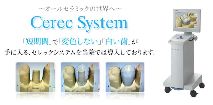 セレックシステム
