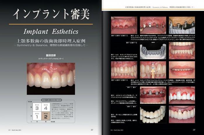 Dental Implantology抜粋