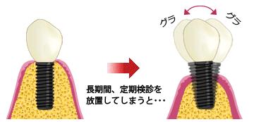 インプラント歯周炎図